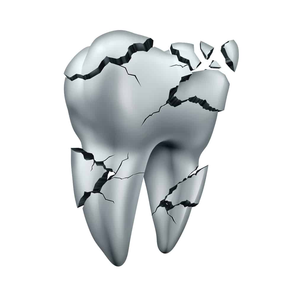 About Dental Crown Placement Ankeny Ia When you look in the mirror, you might not feel happy with your smile if there is a tooth that. peddicord family dentistry