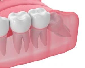 wisdom teeth in need of extraction