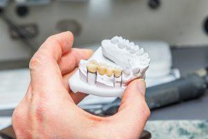 ankeny dental bridge