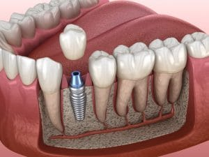 ankeny dental implant