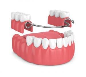 ankeny partial denture