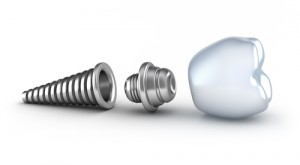 dental implant parts 1