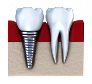 dental implant ankeny