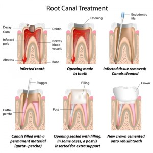 rootcanal